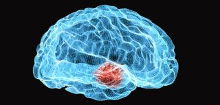 Researchers have finally mapped the underlying whole-brain mechanisms for the use of DBS to alleviate symptoms of Parkinson's Disease.