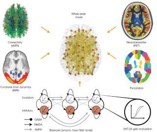 Whole brain model 6