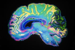 Whole-brain computer modelling reveals the effects of LSD on the human brain