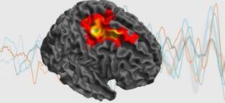 New mrc brain network dynamics unit opens