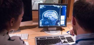 Brain scan imagin