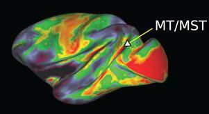 Identifying cortical areas with myelin in vivo