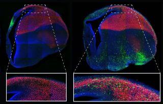 Cerebral cortex 1