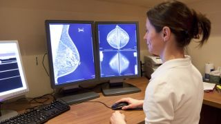 New studies show that two classes of inexpensive generic drugs can reduce breast cancer deaths