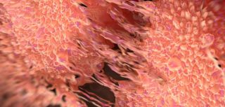 Cancer cell division of two prostate cancer cells in the final stage of cell division (cytokinesis). The cells are joined by several thin cytoplasmic bridges: Image credit: royaltystockphoto.com/ Shutterstock
