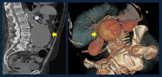 Computerised tomography (CT) scan of an abdominal aortic aneurysm. [LEFT panel: two dimensional image of a abdomen cross section; RIGHT panel: three dimensional reconstruction of the image. The AAA is indicated by the yellow arrows] The blue arrow in the left panel shows the normal sized aorta.