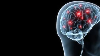 High blood pressure could significantly raise the risk of developing vascular dementia