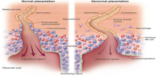 Improving the prediction of preeclampsia