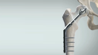 Largest ever clinical trial in hip fracture fixation reaches key milestone