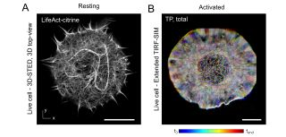 (A) 3D-Reconstruction of the cortical actin cytoskeleton in resting Jurkat T-cells expressing LifeAct-citrine. (B) Temporal projection (TP) of activated Jurkat T-cell expressing LifeAct-citrine.