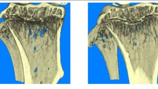 New hope for patients with cancer-induced bone diseases