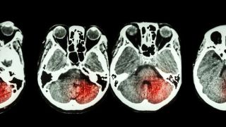 In suitable patients, benefits of stroke thrombolysis clearly outweigh risks