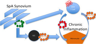 Model for role of GM-CSF in spondyloarthritis chronic inflammation. GM-CSF is produced by joint-resident innate lymphoid cell (ILC) and infiltrating CD4 T cells and acts to activate monocytes to produce other molecules that propagate the inflammatory response.