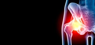 Our research focuses on hip osteoarthritis, from identifying its causes to developing new surgery techniques for the condition.