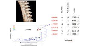 Wordsworth group genetics of ankylosing spondylitis