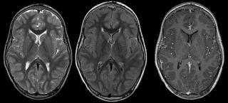 Encephalitis mri