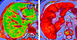 Litmus liver scans 1