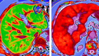 A pioneering European research project aims to lead to new diagnostic tests to assess patients with non-alcoholic fatty liver disease (NAFLD) and identify those most at risk for developing severe inflammation and liver scarring. Researchers from the Oxford Centre for Clinical Magnetic Resonance Research will play a key role in evaluating a series of biomarkers for NAFLD.