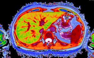 Liver scan