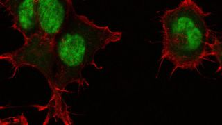 Credit: Katja Gehmlich and Charlotte HooperFrom the RDM Image Competition 2015. The cells shown here are COS-1 cells. This is a monkey fibroblast cell line, which we use in the lab to produce recombinant proteins in a cellular environment, e.g. to compare disease-causing mutants with their wild-type counterparts. In this particular image, the actin cytoskeleton of the cells is stain in red (using phalloidin, a toxin of the death cap mushroom) and their nuclei are stained in green (using DAPI, 4',6-diamidino-2-phenylindole, a substance that binds to DNA).