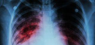 Biomarker discovery offers hope for new tb vaccine