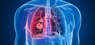 Genetic expression predicts lung cancer survival