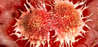 Identifying cancer2019s food sensors may help to halt tumour growth