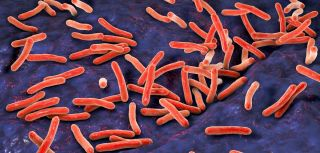 Researchers have for the first time shown that standard tuberculosis (TB) diagnostic tests can be replaced by a sub-24 hour genetic test applied to the TB bacteria in a patient's sputum.