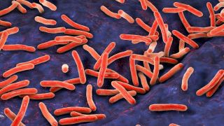 Genetic sequencing offers same-day TB testing