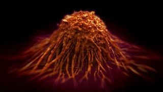 The future of cancer treatment