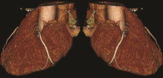 Heart scan banner