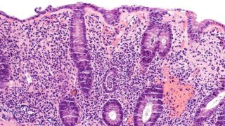 Single cell analysis paves the way for better treatments for IBD