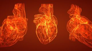 Researchers spot tell tale signs of potentially fatal cardiac arrest in hypertrophic cardiomyopathy