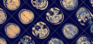 Experimental cancer drug shows promise for parkinson2019s.jpg