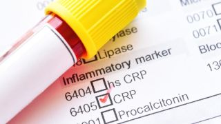 Scope for inflammatory marker laboratory tests to move into community settings