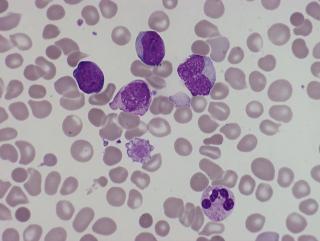 Neonatal haematology
