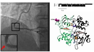 Coronary angiogram from a patient with an alteration in an ion channel functional and computational analysis of the defect