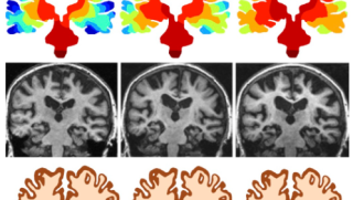 Are there generic features of diseases such as alzheimers that can be explained from simple mechanistic models