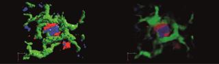 Mechanisms of metastasis 2.png