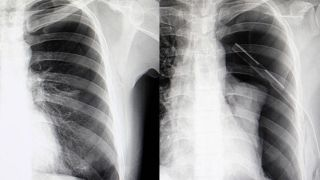 Study reveals trends in incidence of spontaneous pneumothorax
