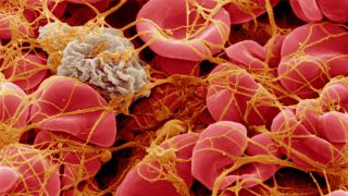 Clinical academic research partnership to improve diagnosis of myelodysplastic syndromes
