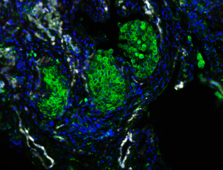 Macrophages in IPF lungs