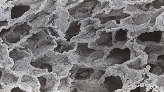 A low power scanning electron micrograph of alveoli of the human lung