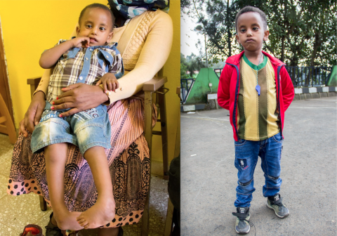 before and after pics of child with clubfoot