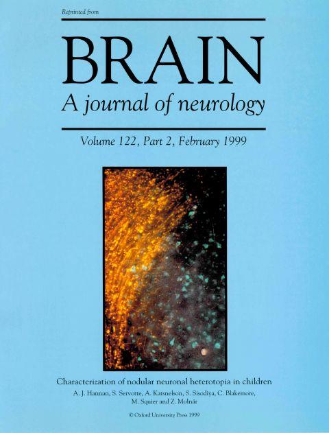 Brain 1999.jpg