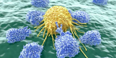 Cancer cell attacked by lymphocytes