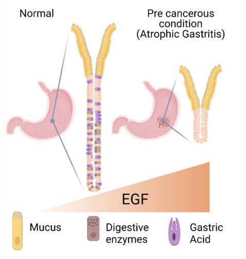 A picture from the published paper showing how normal gastric pits can change shape and functionality if EGF levels are altered, and eventually lead to the pre-cancerous condition Atrophic Gastritis