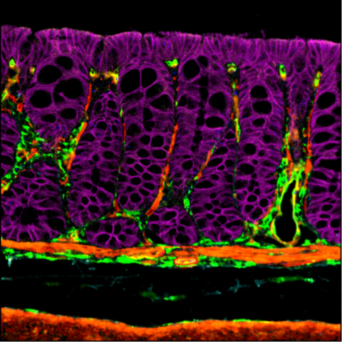 Image 2 – a section of mouse colon. Epithelium cells (purple) surrounded by a supporting matrix of cells that communicate with these cells, influencing the epithelial cell growth and progression. Eoghan is investigating how these supporting cells change depending on the mutations expressed by epithelial cell mutations.