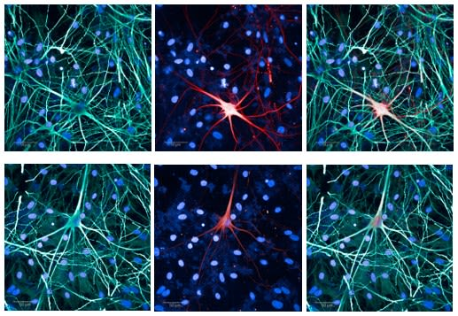 Image showing alpha-synuclein (red) accumulating in cortical neurons