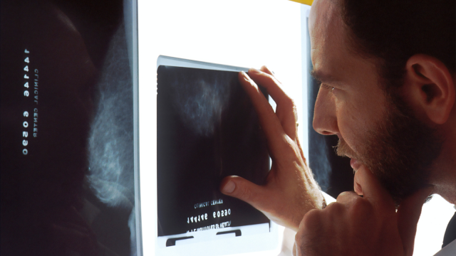 Doctor looking at a mammogram scan of a breast
